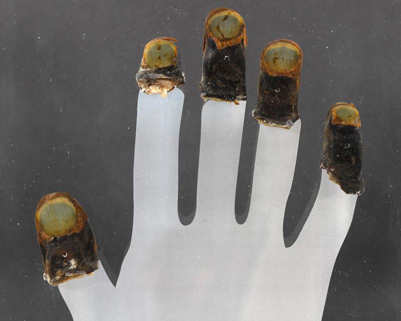 Bronco's frostbitten fingertips