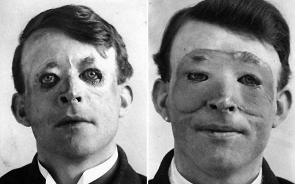 Walter Yeo, a sailor, before (left) and after (right) skin flap surgery performed by Gillies in 1917