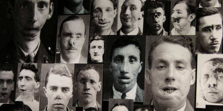 Collage of First World War facial injuries